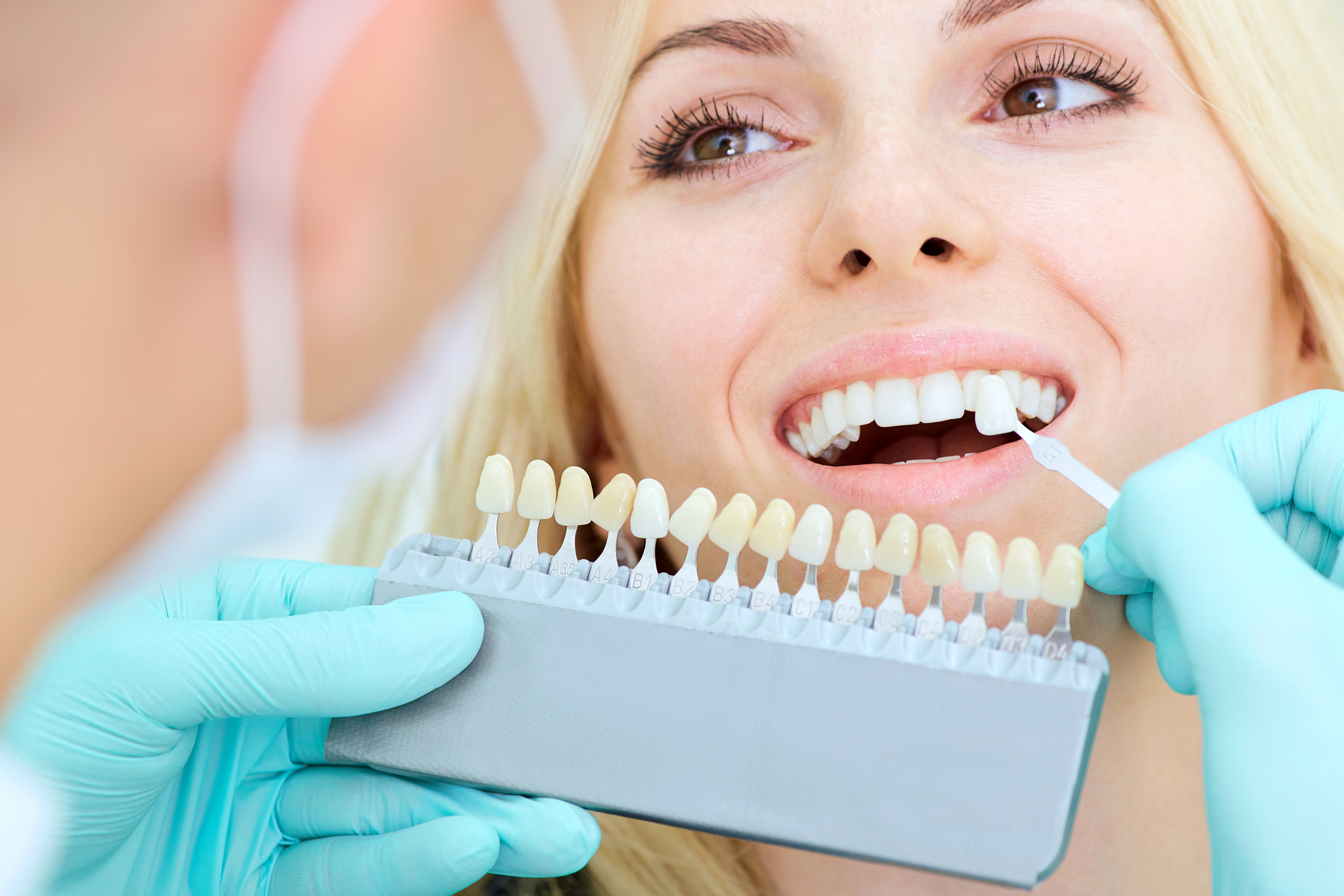 Teeth Whitening OKC