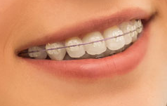 orthodontic-braces-patient