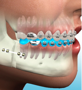 orthodontic-surgery